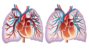 Soluciones instantáneas a Hipertensión arterial en detalle paso a paso